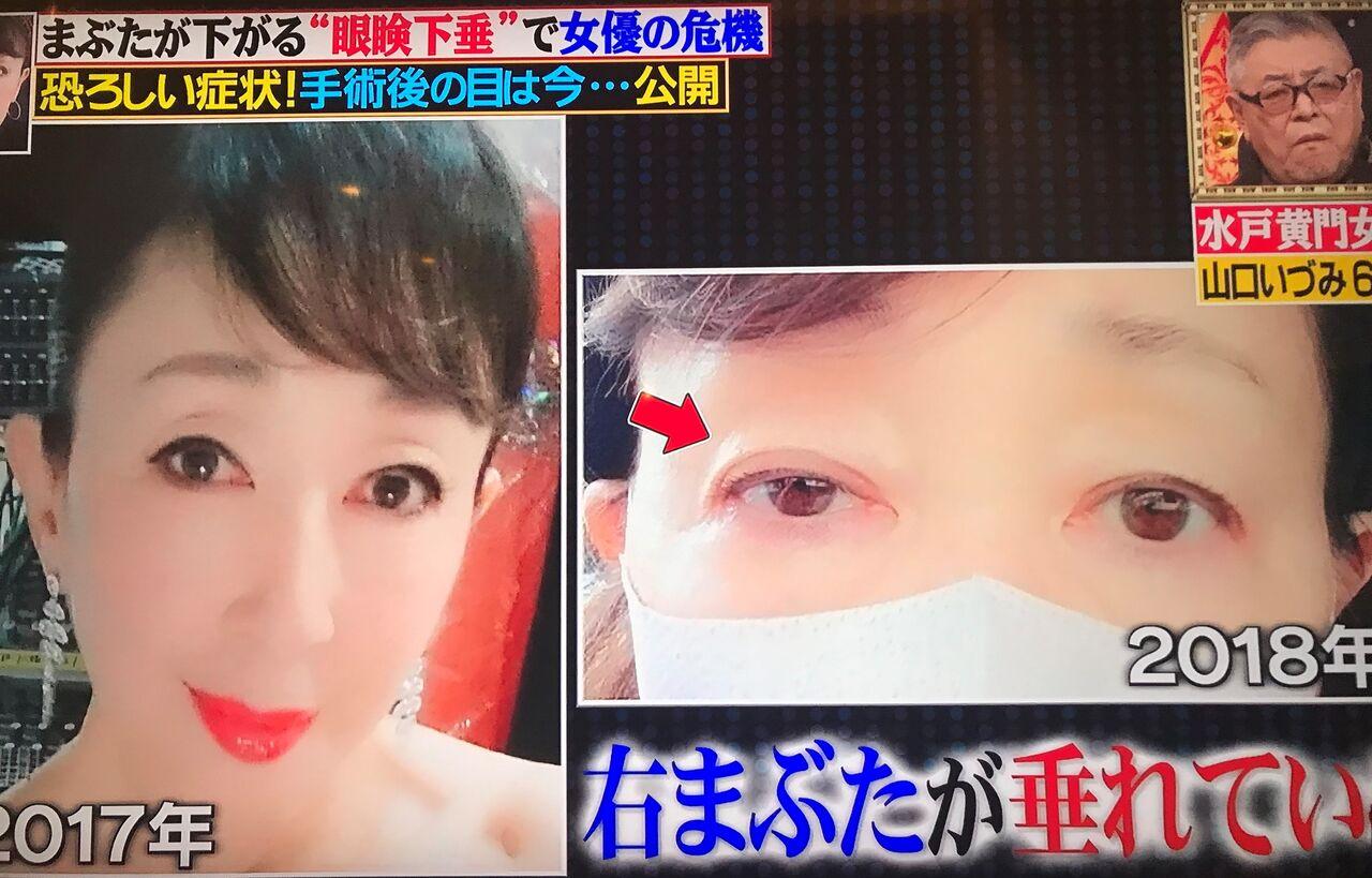 病気 顔 和田 アキ子