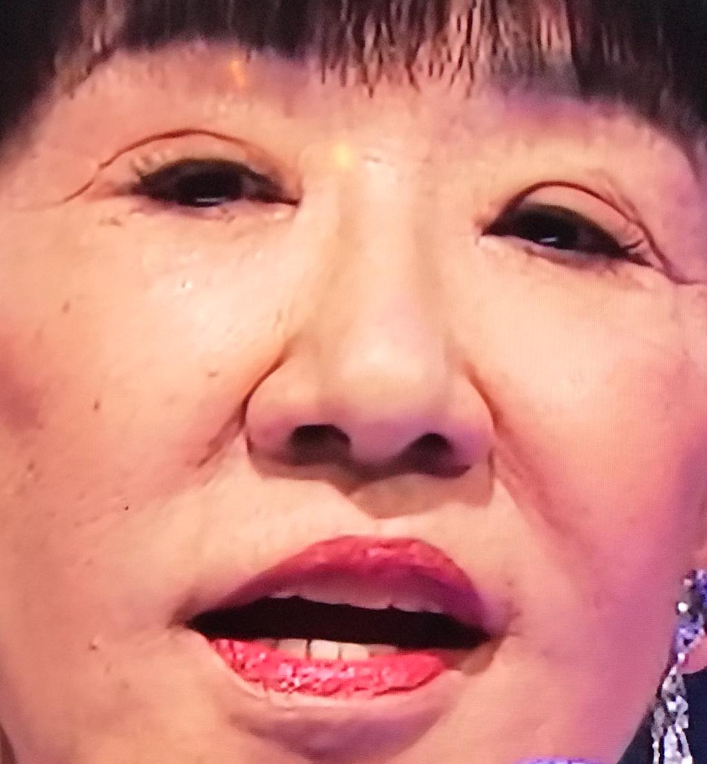 和田アキ子 手術
