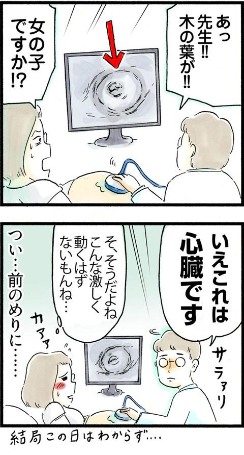 677性別判明…__02
