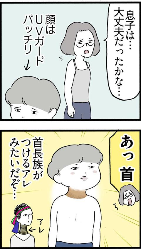 386うっかり焼け_02