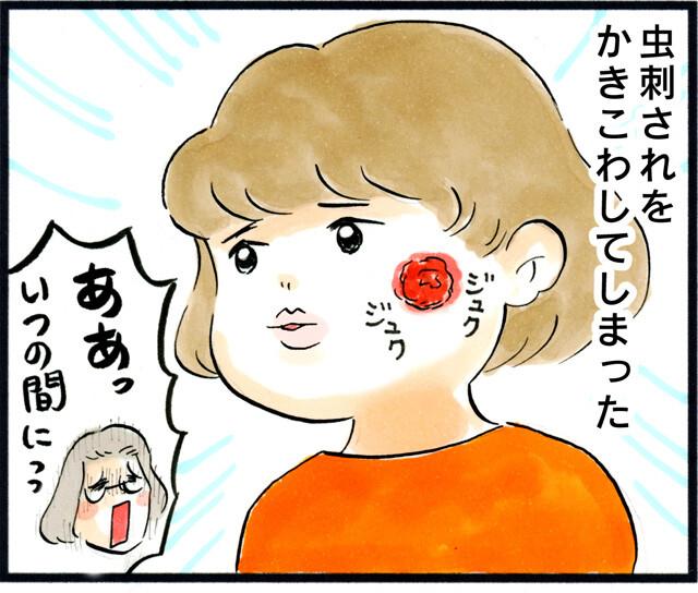 1385塗り薬の難_01