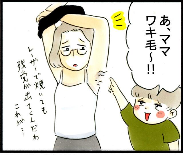 1274ワキ毛_01