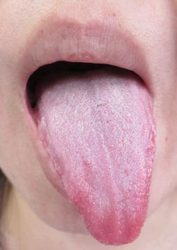 舌の表blog用