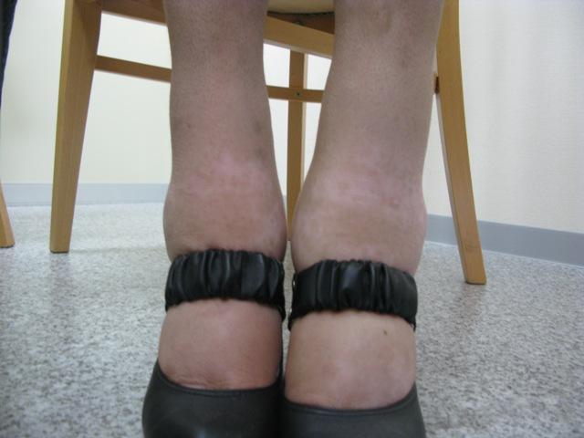 漢方薬服用後2010年6月7日足の浮腫み