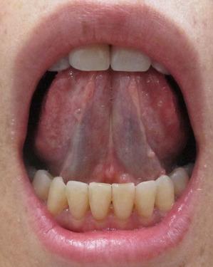 20150325舌の裏