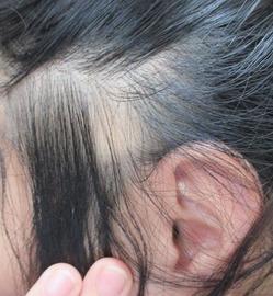 20150527左耳上