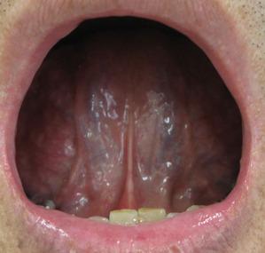 20120623舌の裏