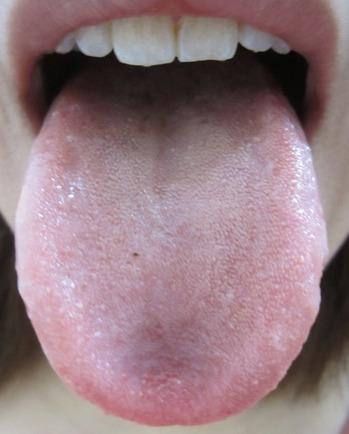 20130123舌表