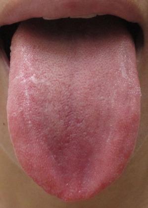 20150807舌の表