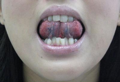 20110825舌裏