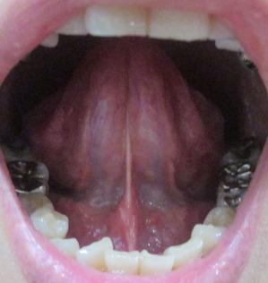 20150413舌の裏