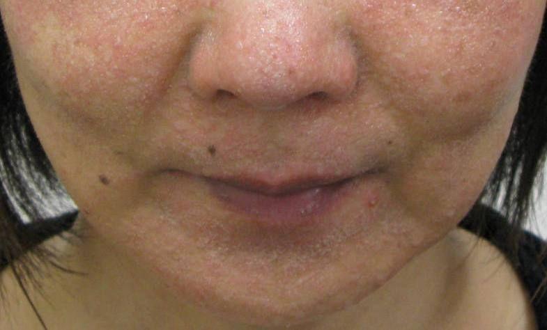 顔 ザラザラ ブツブツ 肌がザラザラさめ肌の原因と改善策!毛孔性苔癬に近い症状|医師監修...