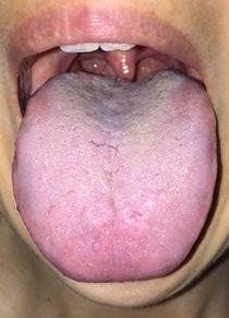 20160527舌表