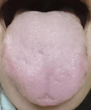 20151030舌の表
