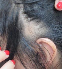 20150619左耳側