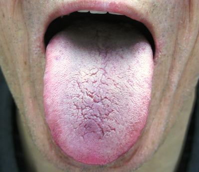 20120723舌表
