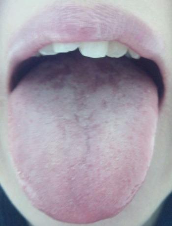 20140218舌表
