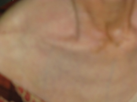 2008.11.6尋常性白斑ー8