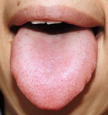 20140326舌表