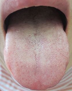 20130308舌の表