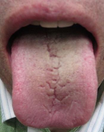 20130614舌表