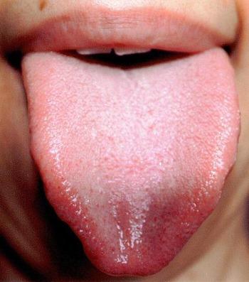 20130709舌表