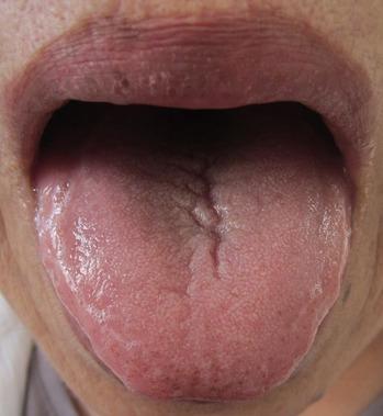 20130914舌表