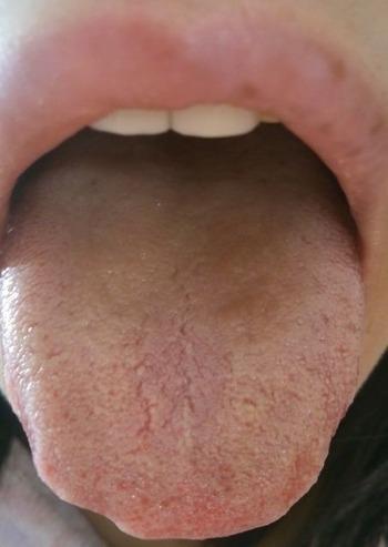 20131214舌表