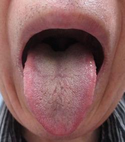 20151029舌表