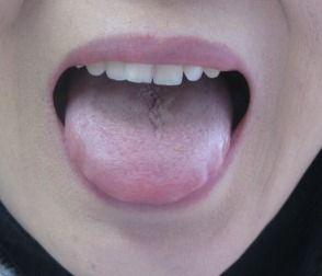 舌表 漢方薬服用前