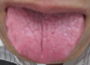 20130422舌の表
