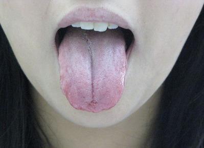 20110825舌表