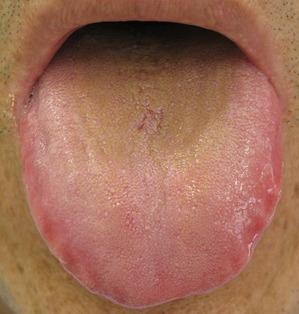 20120623舌の表