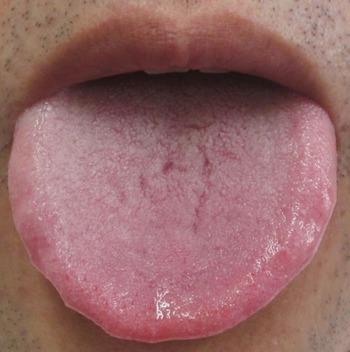 20131004舌表