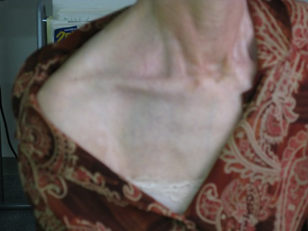 2008.11.6尋常性白斑ー4