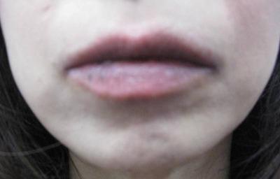 20110717唇