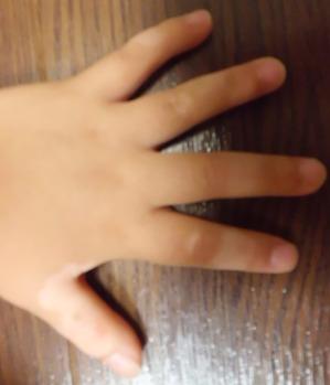 20150517左手