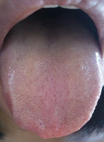 20131003舌表