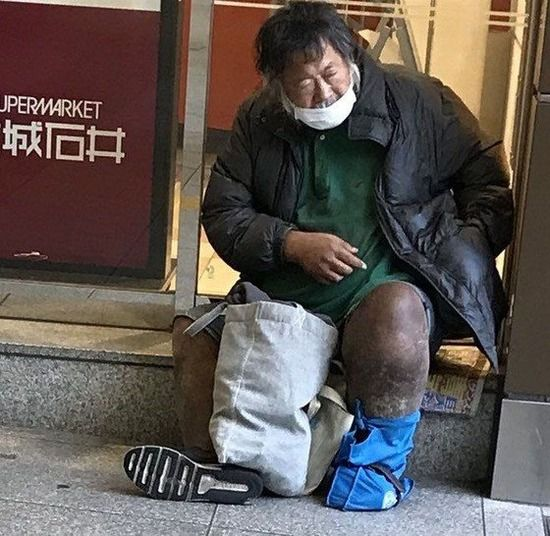 【画像】左足壊死ニキの足、ついに武装色の覇気をまとうwwwwww