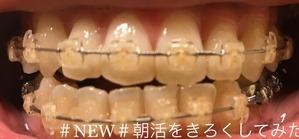 歯科矯正6ヶ月目
