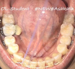 歯科矯正25ヶ月  した
