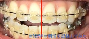 歯科矯正10ヶ月目 口のズレ