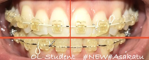 大人の歯科矯正32ヶ月目 ブラケット26ヶ月目 線