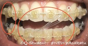 歯科矯正25ヶ月  正面 ゴム 口オープン