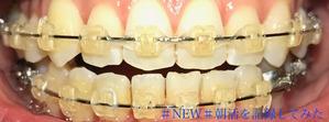 歯科矯正10ヶ月目
