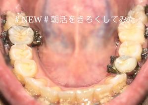 歯科矯正8ヶ月目裏下