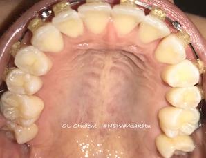 大人の歯科矯正34ヶ月目 ブラケット28ヶ月目 上