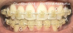 歯科矯正25ヶ月  正面