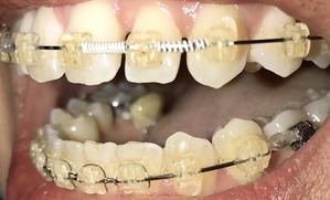歯科矯正17ヶ月目 隙間