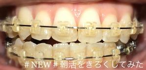 歯科矯正8ヶ月目